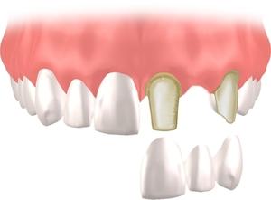 複数歯10